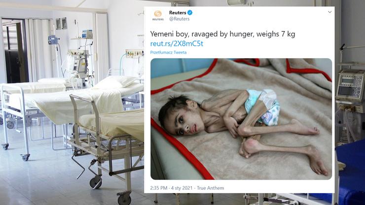 Jemen. Skrajnie wygłodzony 7-latek trafił do szpitala. Waży 7 kilogramów