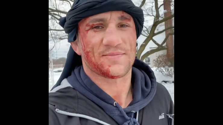 Zawodnik UFC skoczył na główkę do zamarzniętego stawu. Później wybrał się w kasku (WIDEO)